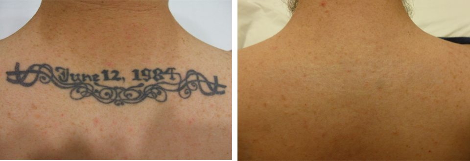 Denver 39 s original tattoo removal since 2006 ink b gone for Invisible ink tattoo removal price
