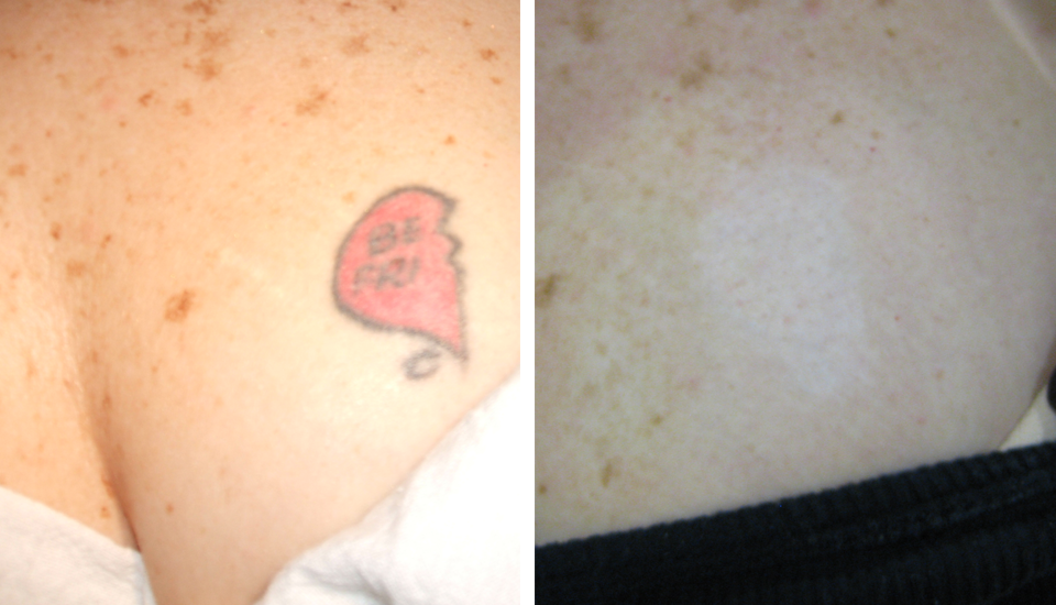 natural tattoo removal techniques: Laser Tattoo Removal Denver