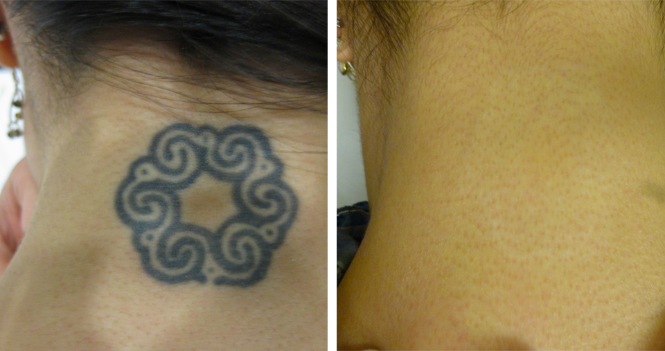 After laser tattoo removal with Ink-B-Gone