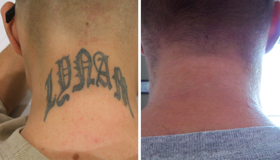 Before & after Ink-B-Gone laser tattoo removal