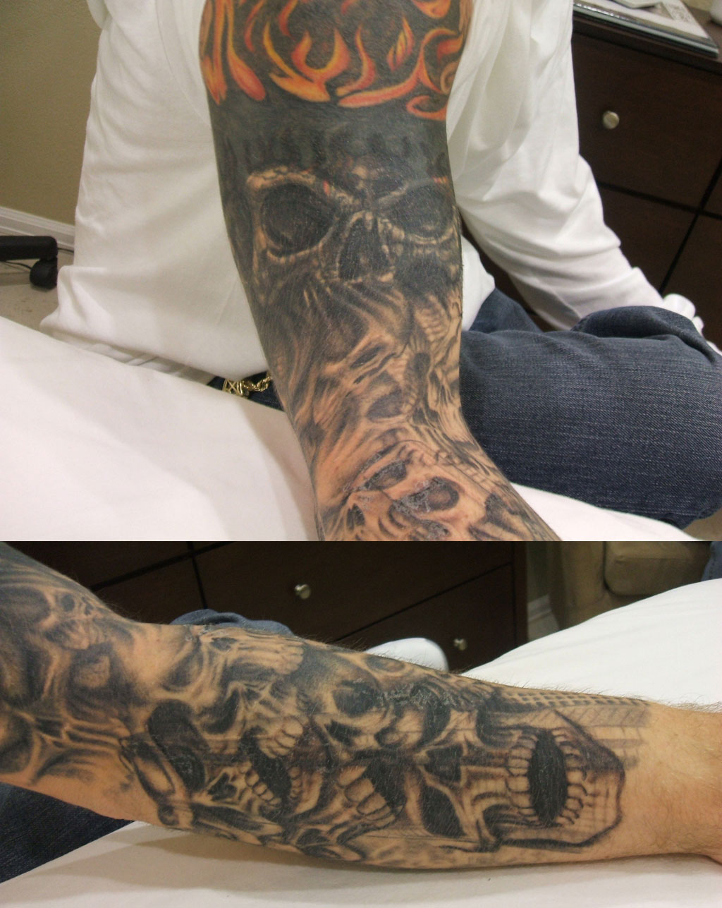 Ink-B-Gone client Before