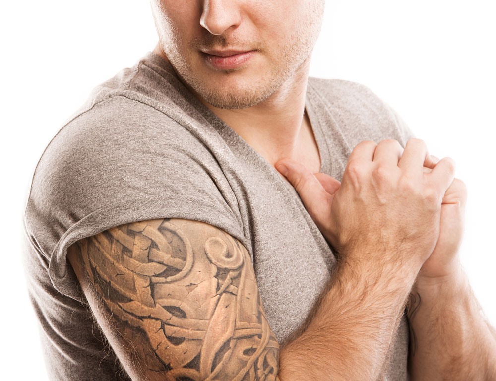Ink-B-Gone laser tattoo removal in Denver